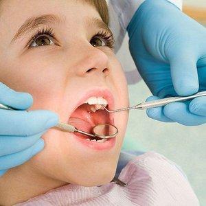 Налет Пристли на молочных зубах у ребенка
