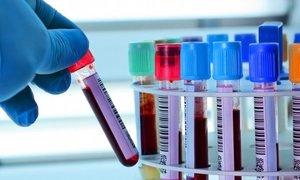 Сдать анализ ТТГ для диагностики заболеваний щитовидной железы