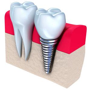 В чем преимущества зубных имплантов?