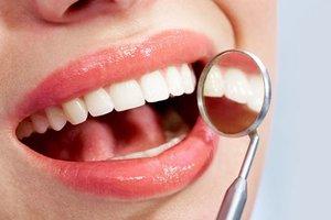Как часто необходимо посещать стоматолога?