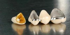 Восстановление утраченного зуба при помощи металлокерамической коронки