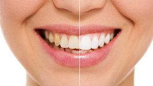 Гигиена полости рта с отбеливанием FIRFLOW