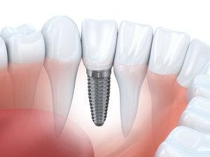 Установка зубных имплантов в Вологде