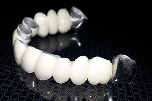 Изготовление зубных протезов на основе металлокерамики