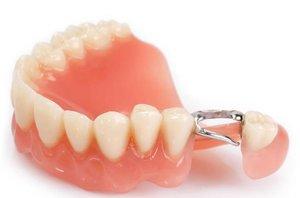 Протезирование зубов Череповец цены