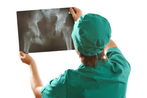 Записаться на рентген в Вологде