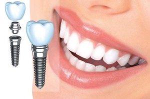 Услуги имплантации зубов в Череповце