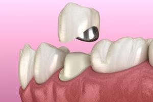 Металлокерамические зубные коронки. Преимущества и недостатки