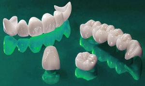 Нужны коронки на зубы? Обращайтесь!
