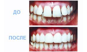 Винирование зубов прямым методом