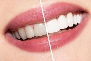 Профессиональноеотбеливание зубовв Вологде