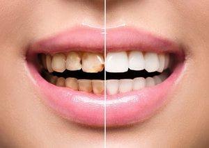 Реставрация зубов с помощью современных технологий в Череповце