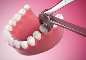 Бережное удаление зубов