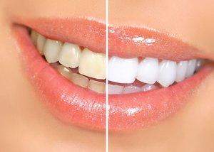 Профессиональное отбеливание зубов ZOOM 4 White Speed