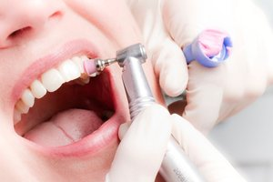 Записаться на чистку зубов