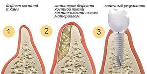 Остеопластика в Череповце