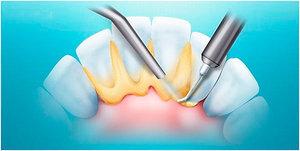 Как избавиться от зубных отложений?