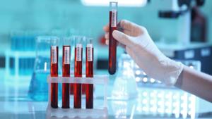Сдать кровь для проведения анализа на онкомаркеры