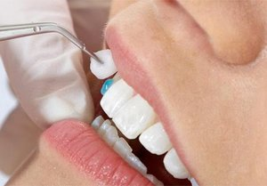 Методы эстетической стоматологии