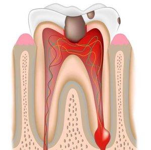 Лечение хронического периодонтита зубов в Череповце