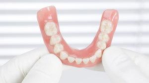 Что такое съемный протез зубов. Его плюсы, минусы и срок службы