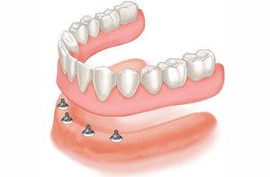 Показания к установке зубных протезов