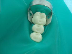 Коффердам - гарант качества и безопасности в центре стоматологии «Эстетика»
