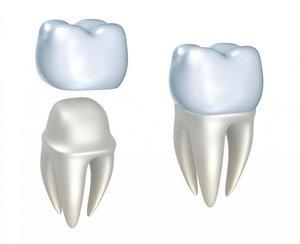 Установить коронку на зуб в Череповце