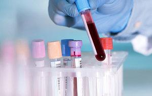 Анализ крови на антитела к коронавирусу