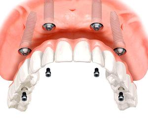 Сложная имплантация зубов в Череповце