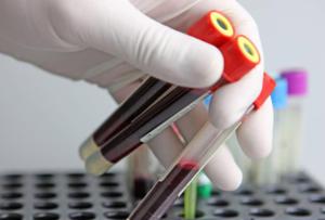 Сдать анализ крови для проверки уровня гормонов ТТГ