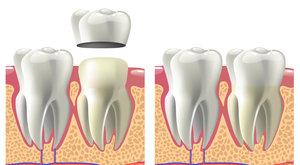 Установка коронки на зуб в Череповце