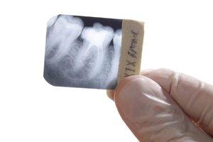 Сделать рентген зуба без очередей
