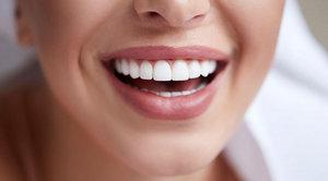 Установка виниров на зубы в Вологде