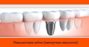 Имплантация зубов в стоматологической клинике Эстетика