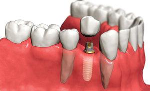 Зубные импланты в Череповце