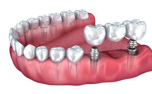 Имплантация зубов с последующим протезированием в Вологде