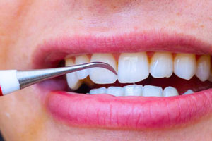 Удаление зубного камня в Оренбурге недорого
