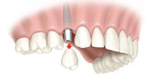 Где установить зубные импланты в Череповце?