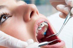 Записаться на прием к ортодонту в Вологде