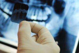 Сделать рентген зуба в Вологде