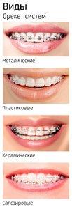 В нашей клинике ведет прием врач стоматолог-ортодонт!!!