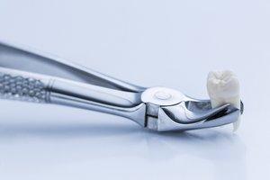 Удаление зуба в Вологде
