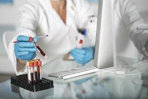 Сдать анализы на онкомаркеры в Вологде