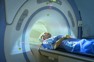 МРТ рассеянного склероза в Вологде