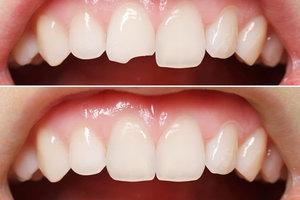 Качественная реставрация зубов Вологда