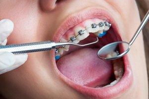 Записаться на прием к врачу ортодонту в Вологде