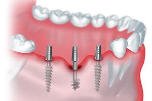 Предоставляем услуги по имплантации зубов. Обращайтесь!