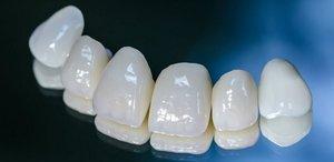 Установить протезы из безметалловой керамики