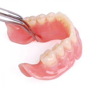 Протезирование зубов Вологда